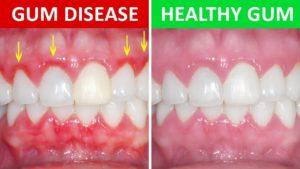 Gum disease Side by Side